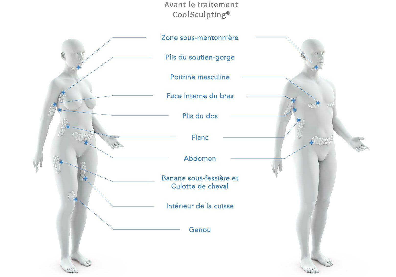 Retrouvez ici les différentes zones du corps traitées par Coolsculpting